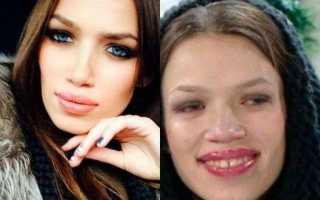 Инесса шевчук до пластики и после: фото